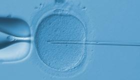 体外受精のイメージ