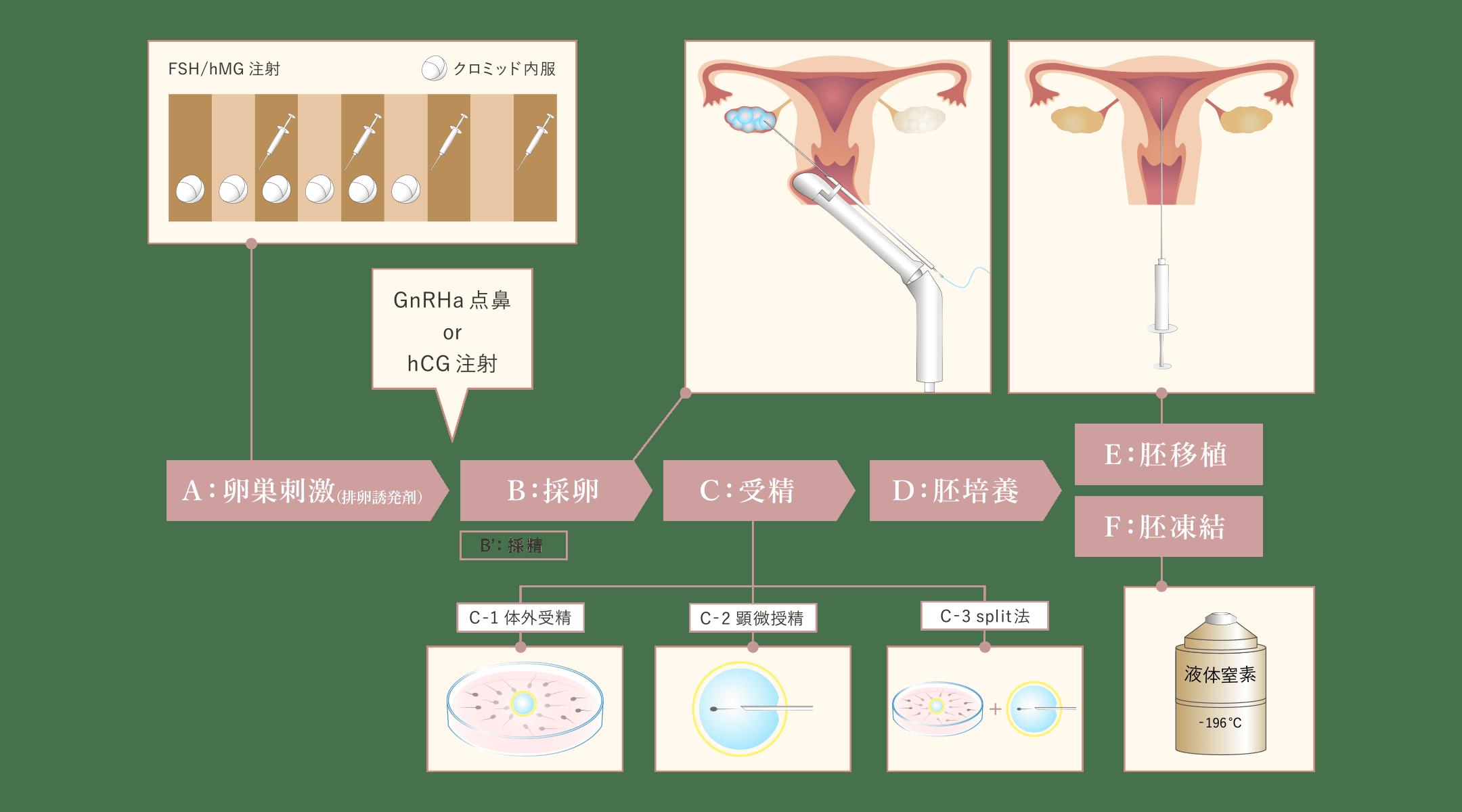 体外受精の流れの図