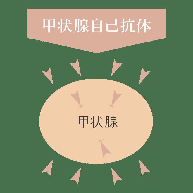 橋本病(慢性甲状腺炎)